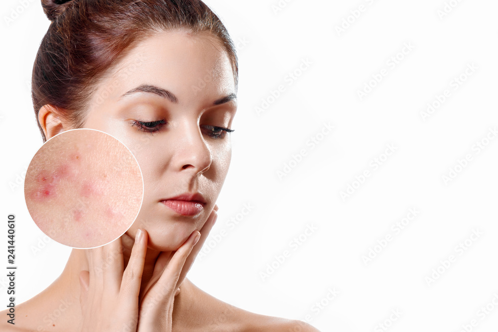 Fototapety, obrazy: Young woman with acne skin in zoom circle. Skin care concept. Young girl, beauty portrait. Close-up.