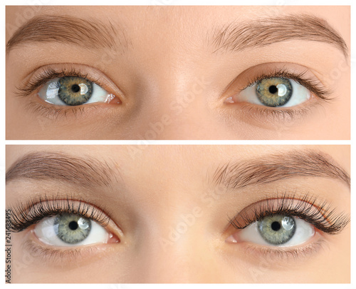 Cuadros en Lienzo Young woman before and after eyelash extension procedure, closeup