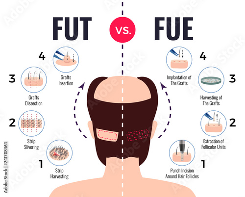 Cuadros en Lienzo Hair Transplantation Fut Vs Fue