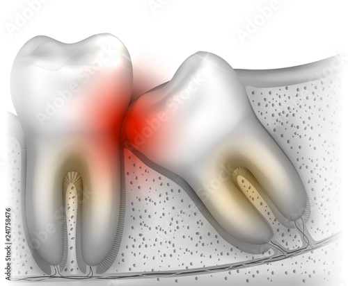 Fotografia, Obraz Wisdom tooth eruption problems illustrated anatomy