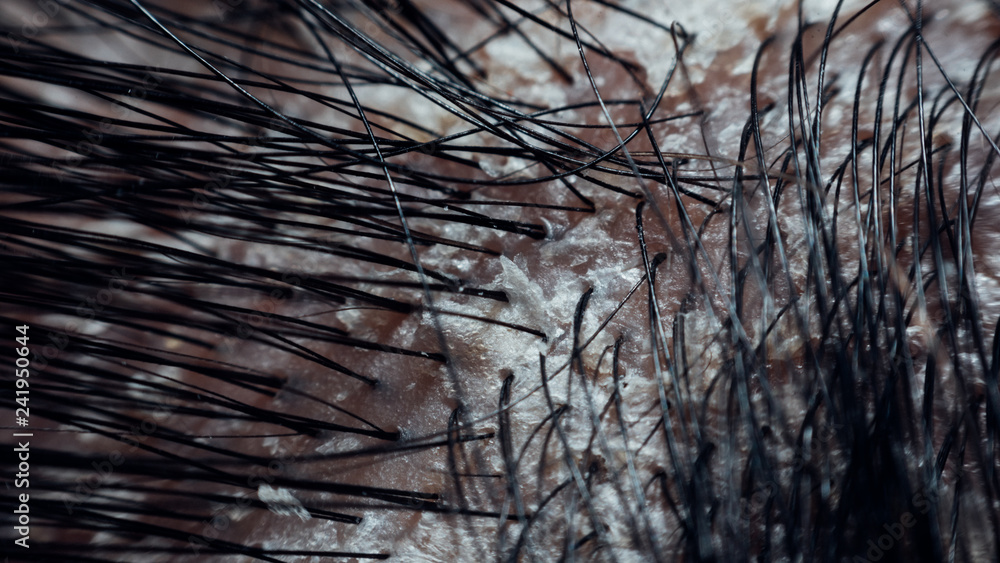 Fototapeta Hair scalp with dandruff and scaly from psoriasis