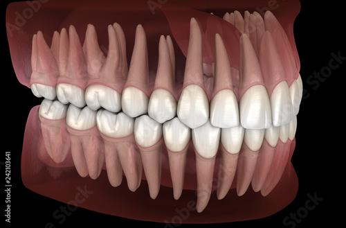 Valokuva  Morphology of mandibular and maxillary human gum and teeth