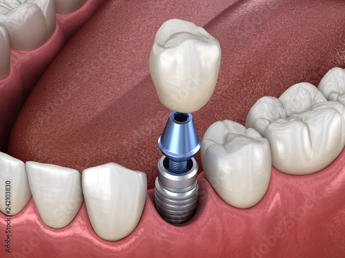 Premolar tooth crown installation over implant abutment Wallpaper Mural