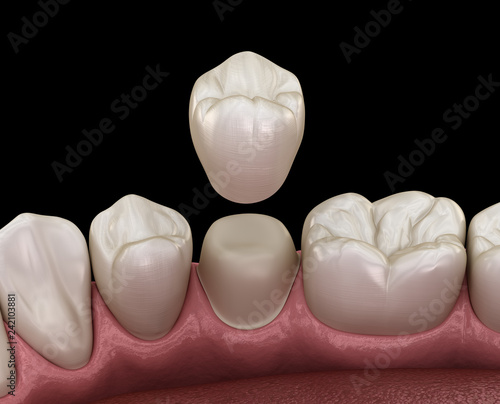 Fotografie, Obraz  Dental crown premolar tooth assembly process