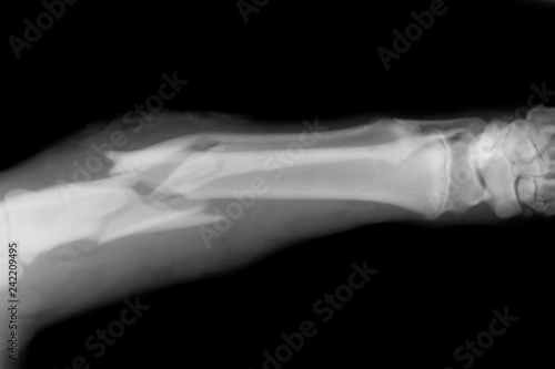 Fotografie, Tablou  Broken Bone X-Ray