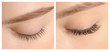 canvas print picture - Young woman before and after eyelash extension procedure, closeup