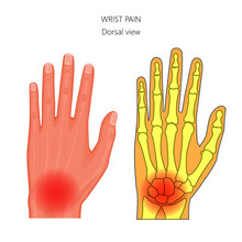 Vector Illustration Of Unhealthy Human Hand With Pain In The Wrist. Anatomy Of The Hand And Wrist. Dorsal View Of The Hand. For Advertising And Other Medical Publications
