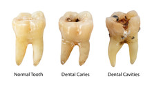 Normal Tooth , Dental Caries And Dental Cavity With Calculus . Comparison Between Difference Of Teeth Decay Stages . White Isolated Background . Front Side View