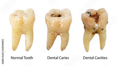 Fotografija Normal tooth , Dental caries and Dental cavity with calculus