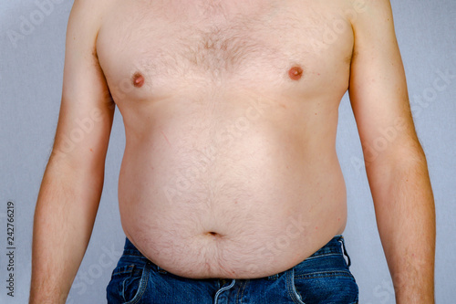 Fotografie, Obraz  Shirtless overweight caucasian man