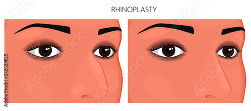 Vector illustration  Crookedness of human nose before, after