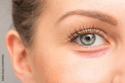 Cuadros en Lienzo Dry skin on eyelid, macro image
