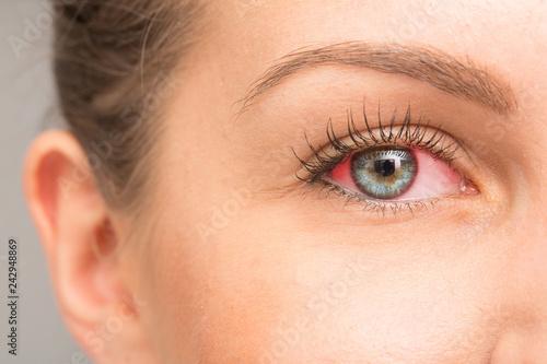 Fotografie, Obraz  Red eye for irritation of the sclera
