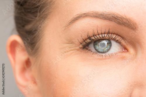 Fototapeta Caucasian female eye suffering from blindness by cataract
