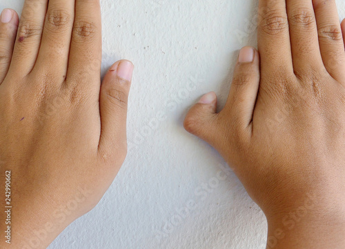 Polydactyly on human; rare abnormal characteristic causes by chromosome Wallpaper Mural