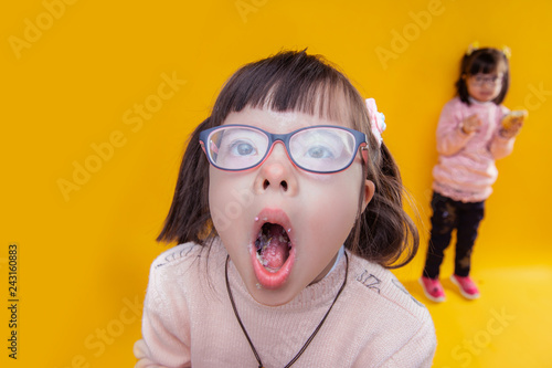Fotografija  Dark-haired girl with down syndrome opening her mouth