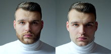 Set Of Beard Man. Hair Style Hair Stylist For Handsome Man. Barber Shop Set. After Or Before Shaven.