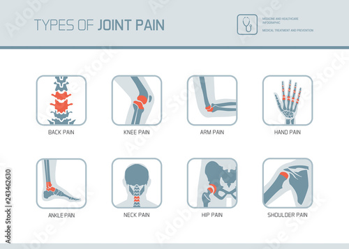 Fotografering Types of joint pain