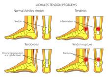 Illustration Of Skeletal Ankle...