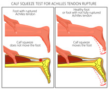 Illustration Of A Calf Squeeze Test Achilles Tendon Rupture. External And Skeletal View Of An Ankle