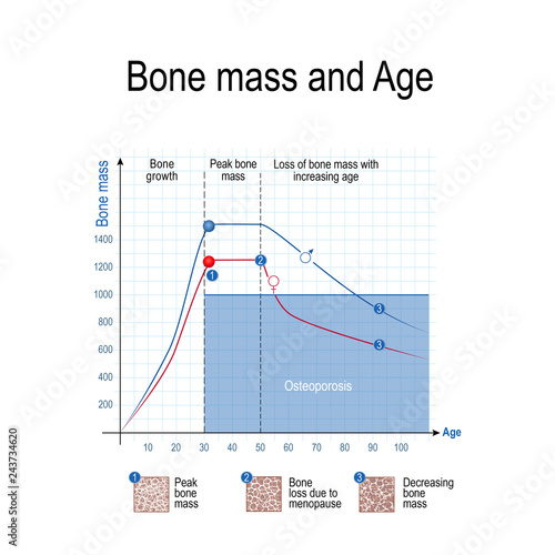 Cuadros en Lienzo  Bone mass for male and female. Age and osteoporosis. Chart.