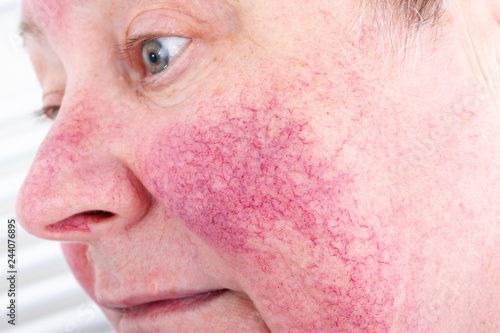 Fotografia  Portrait of unhappy elderly woman suffering skin disease rosacea with no make-up