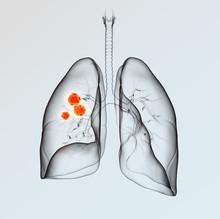 Lung Cancer, Medically 3D Illustration On Light Background
