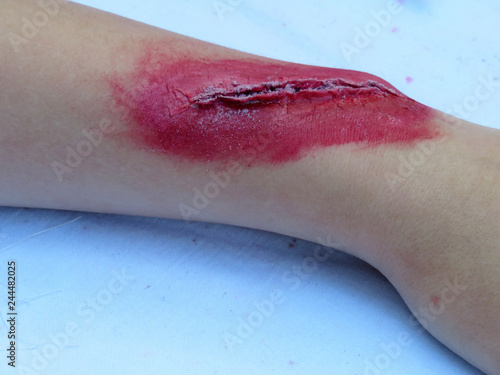 Heavy wound on a human hand. Bloody wound makeup special effect Wallpaper Mural