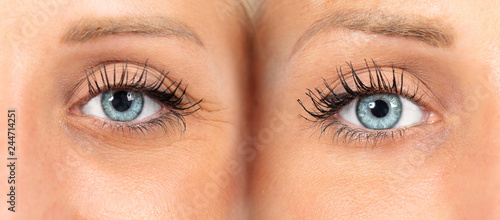 Fototapeta  Female eyes before and after wrinkles removal