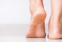 Close Up Of Cracks On Heels Wi...