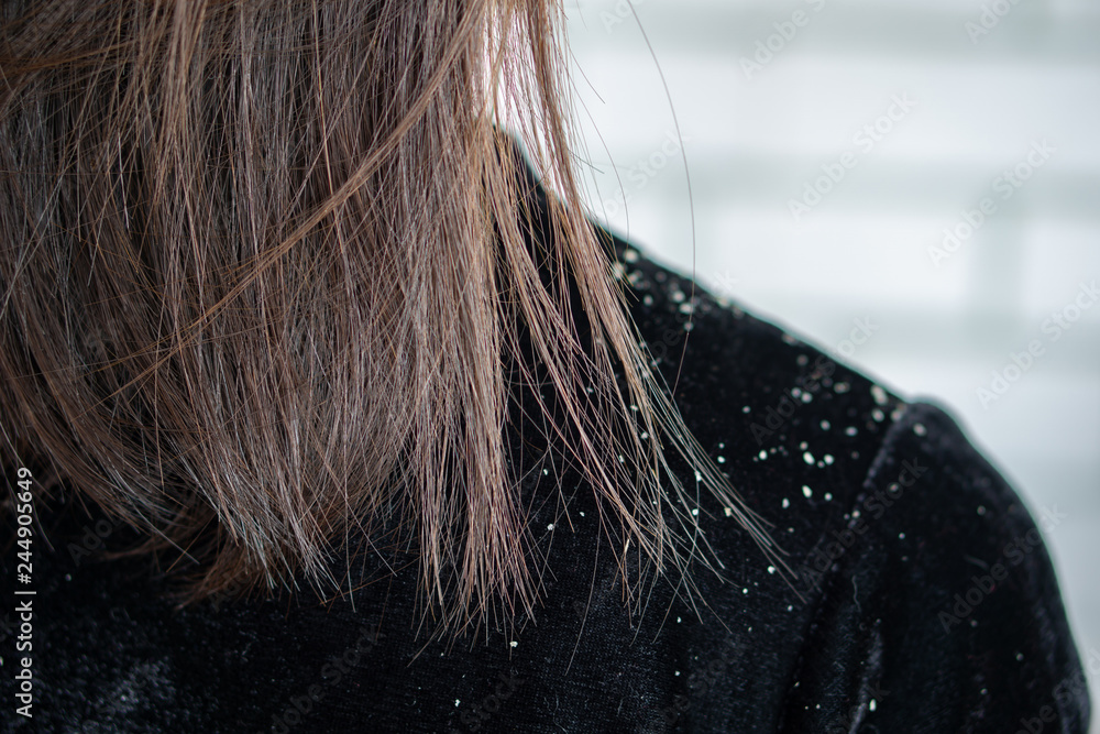 Fototapeta  woman hair having problem with dandruff on shoulder
