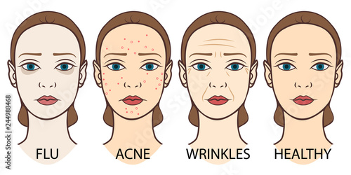 Fotografía  Set of woman faces: pale skin, acne, wrinkles and young healthy skin