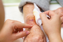 Close Up Old Woman Hand, Upper Limb Or Arm To The Wounded Waiting For Nurse Treatment On Wound Dressing A Bloody And Brine Of Patient.
