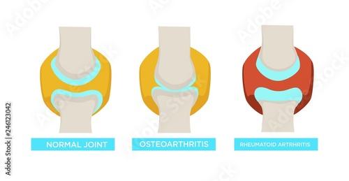 Obraz Normal joint osteoarthritis rheumatoid arthritis vector illustration - fototapety do salonu