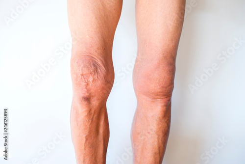 Old man's legs on a white background Canvas Print