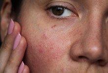 Burst Capillaries On The Girl's Face