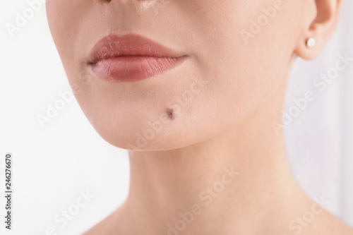 Fotografie, Obraz Young woman with birthmark in clinic, closeup view