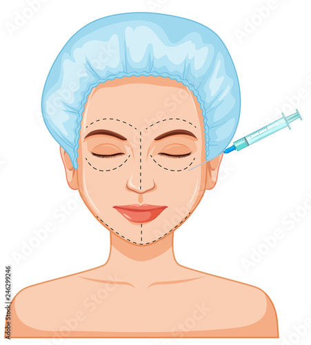 Poster Kids Woman botox filler skin injection