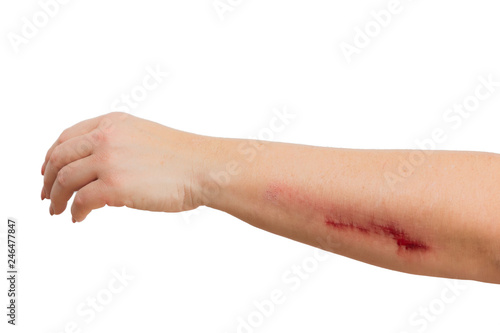 Photo abrasion on a womans arm