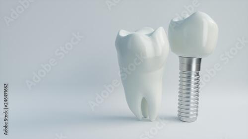 Fotografie, Obraz  Tooth human implant - 3D Rendering