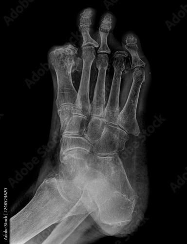 Photo radiografia con perdida de los huesos del pie