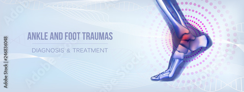 Photo Horizontal ankle and foot traumas banner for social media