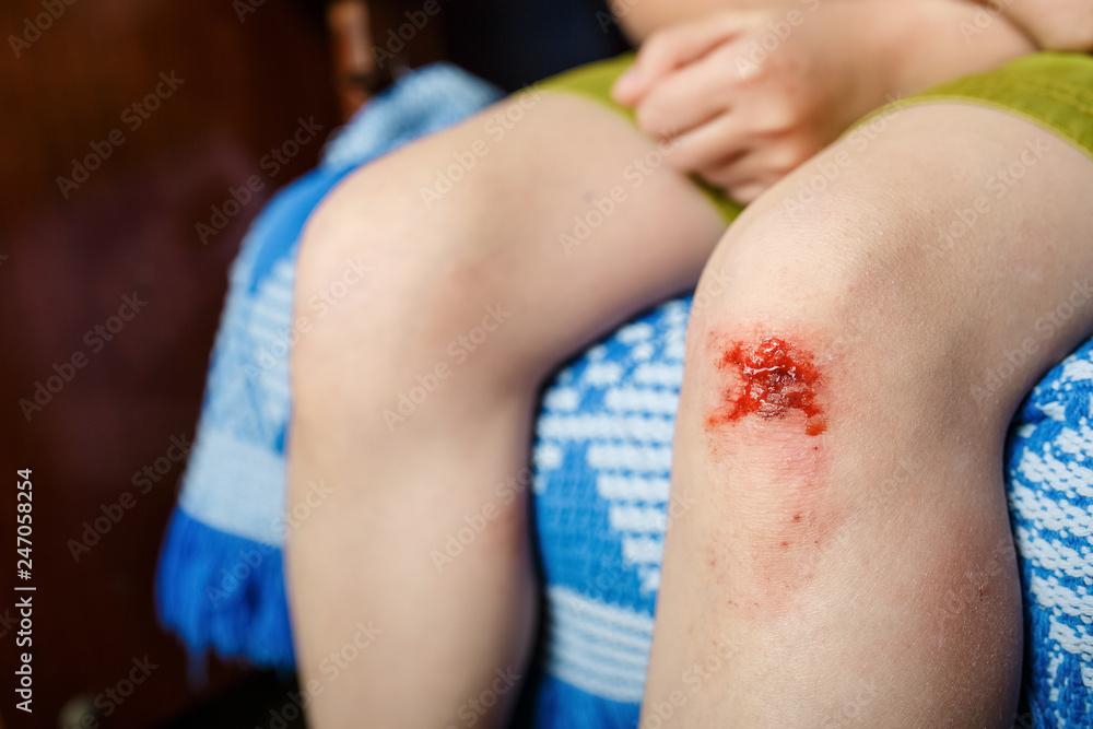 Fototapety, obrazy: little girl hurt her knee