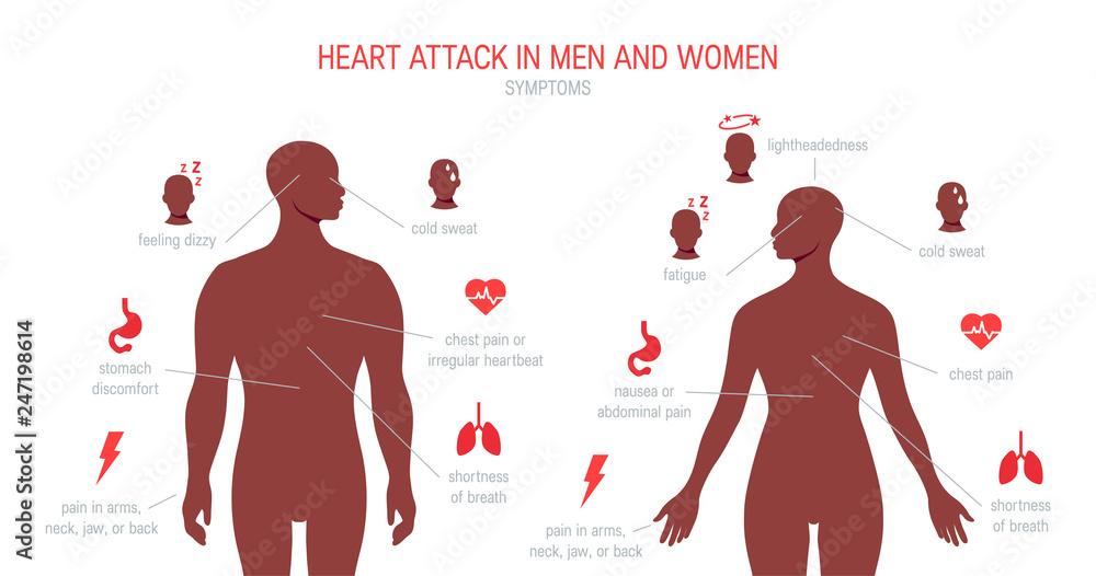 Fototapeta Heart attack symptoms in flat style, vector