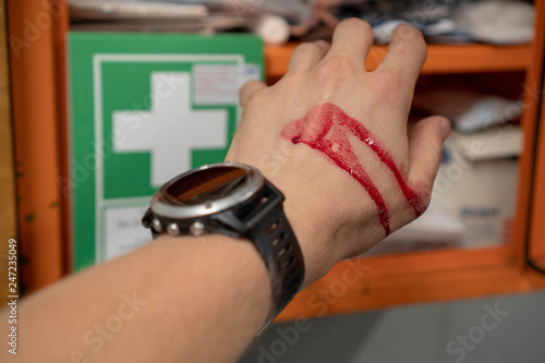 Obraz na plátně Hand in blood with a clock reaching for the first aid kit