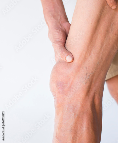 Photo Elderly hands holding legs in the area of the knee that is infla