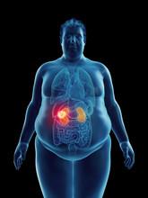 Illustration Of An Obese Man's Kidney Tumor