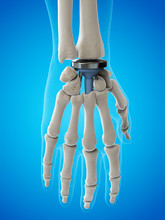Illustration Of A Wrist Replac...