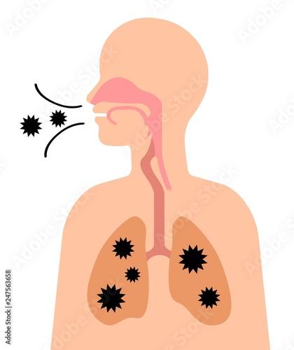 肺に侵入する菌 Tablou Canvas