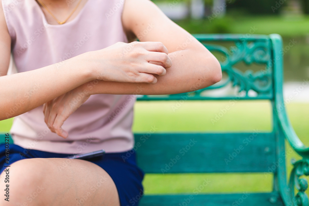 Fototapeta Women who are itching from insect bites in the grass. / Health care and medicine.